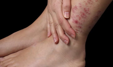 woman with severe psoriasis on leg