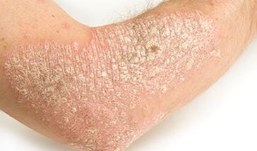 psoriasis covered arm