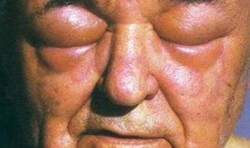 man with very swollen facial skin